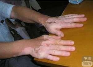 手部白癜风有哪些症状
